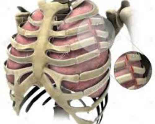 What is Costochondral Separation