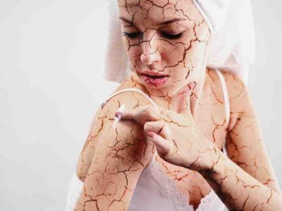 HOW TO DEAL WITH CRACKED SKIN